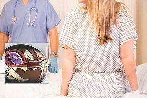 Nong gắp thai an toàn và những điều chị em cần biết