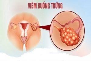 Viêm buồng trứng là bệnh gì nguyên nhân và cách chữa