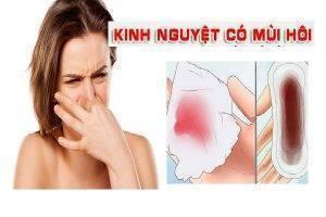 Kinh nguyệt có mùi hôi là bị bệnh gì?