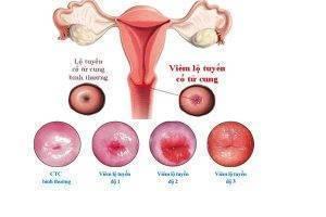 Biểu hiện viêm lộ tuyến cổ tử cung chị em nên biết