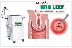 Ưu điểm vượt trội của công nghệ Dao Leep trong hỗ trợ điều trị viêm lộ tuyến cổ tử cung