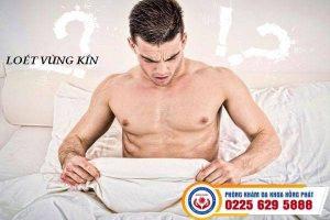Nguyên nhân và cách điều trị loét vùng kín nam giới