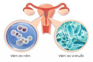 Ngứa âm đạo, đau khi giao hợp là biểu hiện viêm âm đạo ở nữ